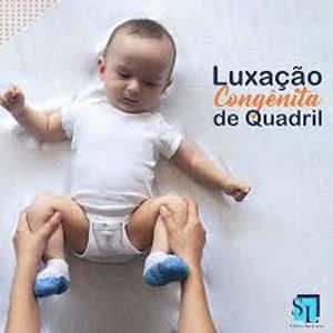 luxacao-congenita-quadril-300x300