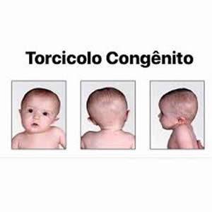 torcicolo-congenito-300x300
