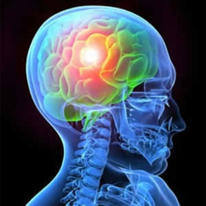 traumatismo-cranioencefalico-300x300